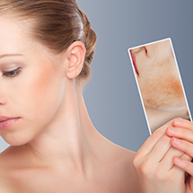 Redness / Rosacea Treatment